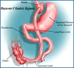 west florida weight loss treatment options : gastric bypass diagram - findchart.co